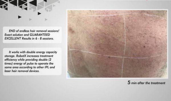 Robotx laser hair removal hybrid a